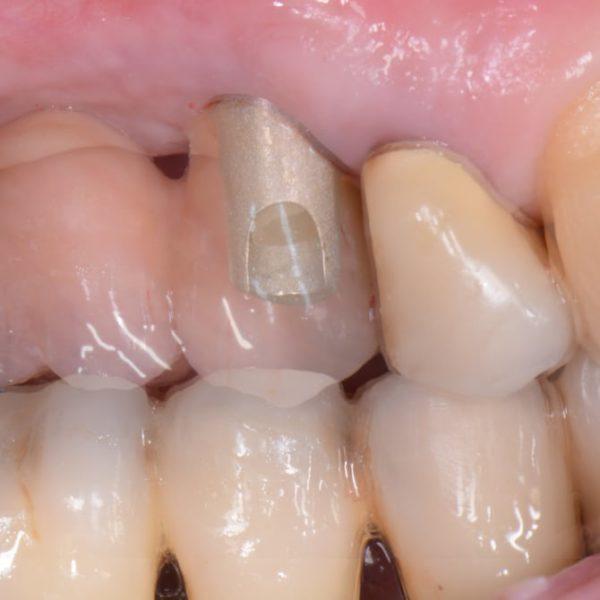 SilverPlug® für den präventiven Implantaterhalt