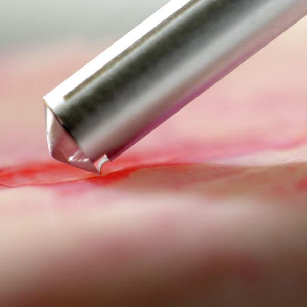 Knochensammler für die Gewinnung von autologem Knochen (kortikal oder spongiös), für die mikroinvasive und gewebeschonende Tunneltechnik. Gewinnt locker ineinander gewickelte Knochenspäne, die im Instrument steril aufgenommen werden. Steriles Einmalprodukt.